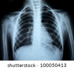 the xray photo of a human bones - stock photo