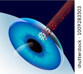 laser eye correction  vector... | Shutterstock .eps vector #1009283503