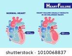 cartoon heart failure concept... | Shutterstock . vector #1010068837