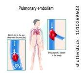 pulmonary embolism. human... | Shutterstock .eps vector #1010269603