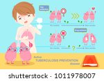 prevention lung tuberculosis... | Shutterstock .eps vector #1011978007