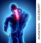 3d illustration  neck painful... | Shutterstock . vector #1012581097