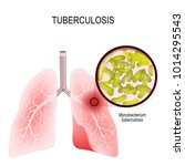 tuberculosis is an infection... | Shutterstock .eps vector #1014295543