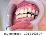 mouth with  prosthetic  teeth.... | Shutterstock . vector #1016143507