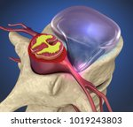 Hernaited  Disc In Human Spine...