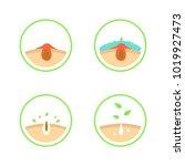 acne or blackhead pore... | Shutterstock .eps vector #1019927473