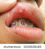 mouth ulcer is an ulcer that... | Shutterstock . vector #1020028183