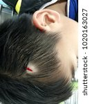 Small photo of laceration wound at scalp, emergency room