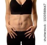 diastasis recti. woman's... | Shutterstock . vector #1020588667