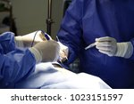 the surgeon's holing the... | Shutterstock . vector #1023151597
