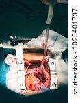 close up of open heart surgery...   Shutterstock . vector #1023401737