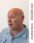Small photo of Older man, bald with alopecia, chemotherapy, cancer, isolated on white, vertical aspect