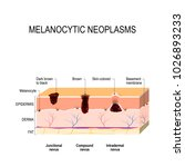 melanocytic nevus. junctional ... | Shutterstock . vector #1026893233