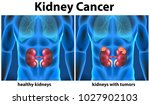 diagram showing kidney cancer... | Shutterstock .eps vector #1027902103