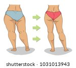 butt and legs of thick and slim ... | Shutterstock .eps vector #1031013943