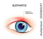 eye of human. blepharitis is a... | Shutterstock . vector #1032860197
