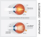 cataracts vision disorder and... | Shutterstock .eps vector #1034180173
