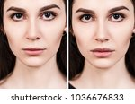 lips of young woman before and... | Shutterstock . vector #1036676833