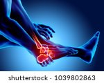 ankle painful   skeleton x ray  ... | Shutterstock . vector #1039802863