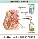 peritoneal dialysis are both... | Shutterstock .eps vector #1045522813