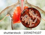bacteria pneumonia  medical... | Shutterstock . vector #1054074107