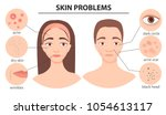 infographics of problem skin.... | Shutterstock .eps vector #1054613117