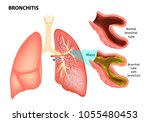 bronchitis. normal bronchial... | Shutterstock .eps vector #1055480453