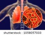 mycoplasma pneumoniae bacteria... | Shutterstock . vector #1058057033