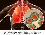 measles viruses in human... | Shutterstock . vector #1062330317