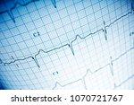 close up of an...   Shutterstock . vector #1070721767