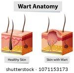 wart human skin anatomy... | Shutterstock .eps vector #1071153173