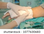 dressing burned wound hand with ... | Shutterstock . vector #1077630683