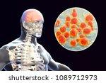 cryptococcal meningitis  3d... | Shutterstock . vector #1089712973