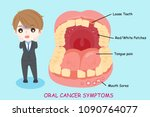 man with oral cancer symptoms... | Shutterstock .eps vector #1090764077