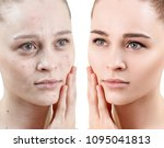 woman with acne before and... | Shutterstock . vector #1095041813