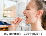 teenager with braces on her... | Shutterstock . vector #1099483943