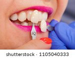 dental shade determination with ... | Shutterstock . vector #1105040333