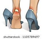 blister and wound on woman heel | Shutterstock .eps vector #1105789697