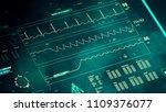 patient's clinical death ... | Shutterstock . vector #1109376077