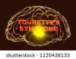 tourette's syndrome  medical... | Shutterstock . vector #1120438133