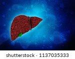 3d illustration liver disease  | Shutterstock . vector #1137035333