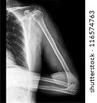 arm  x ray | Shutterstock . vector #116574763