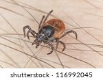 Tick on human, extreme close up with high magnification, focus on tick head - stock photo