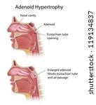 adenoid hypertrophy   Shutterstock . vector #119134837