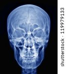 x ray picture of the skull | Shutterstock . vector #119979133