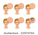 problem skin | Shutterstock .eps vector #125374763