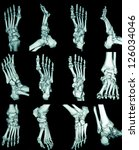 Human foot ankel and leg  CT - stock photo