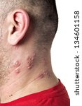 Raised red bumps and blisters caused by the shingles virus - stock photo