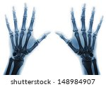 X Rays Of Hands Of An Adult Ma...