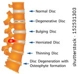 Spine Conditions. Degenerative...